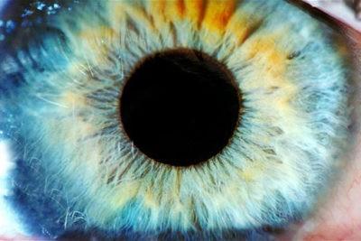 nemici della vista anestetico occhi occhio retina retinite pigmentosa glaucoma