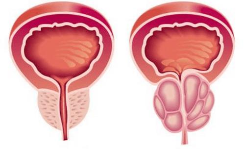 disfunzione erettile e prostatite cronica del